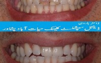 Dental clinic in Peshawar, Dentist in Peshawar, Dentist in Hayatabad Peshawar Pakistan.