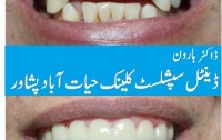 best dental clinic in peshawar, Dr Haroon Dental Specialist Clinic Hayatabad Peshawar