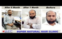 Super Natural Hair Clinic