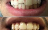 Dental clinic in Peshawar, Dentist in Peshawar, Dentist in Hayatabad Peshawar Pakistan.