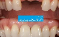 best dental clinic in peshawar, Dr Haroon Dental Specialist Clinic Hayatabad Peshawar